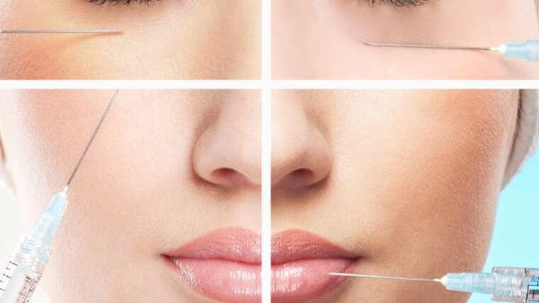 Dermal Filler/ Liquid Facelift