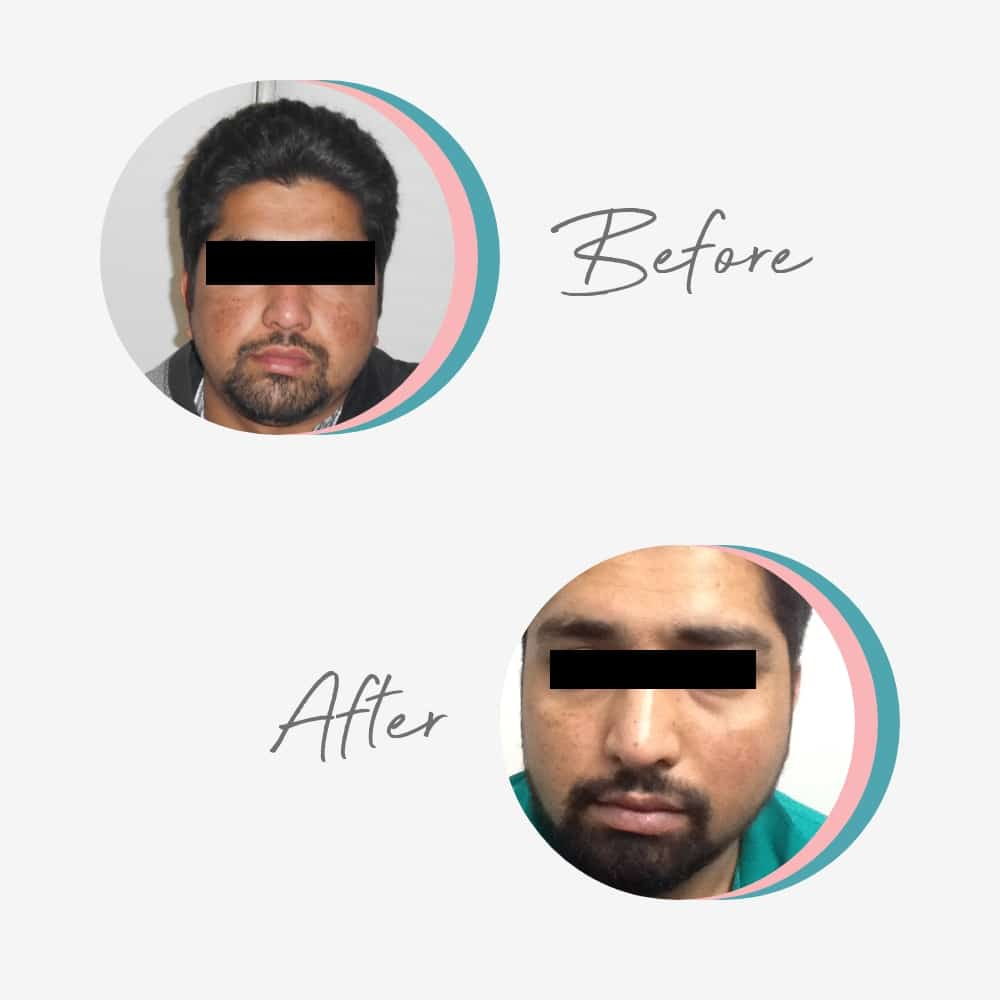 Skin Specialist in Lahore