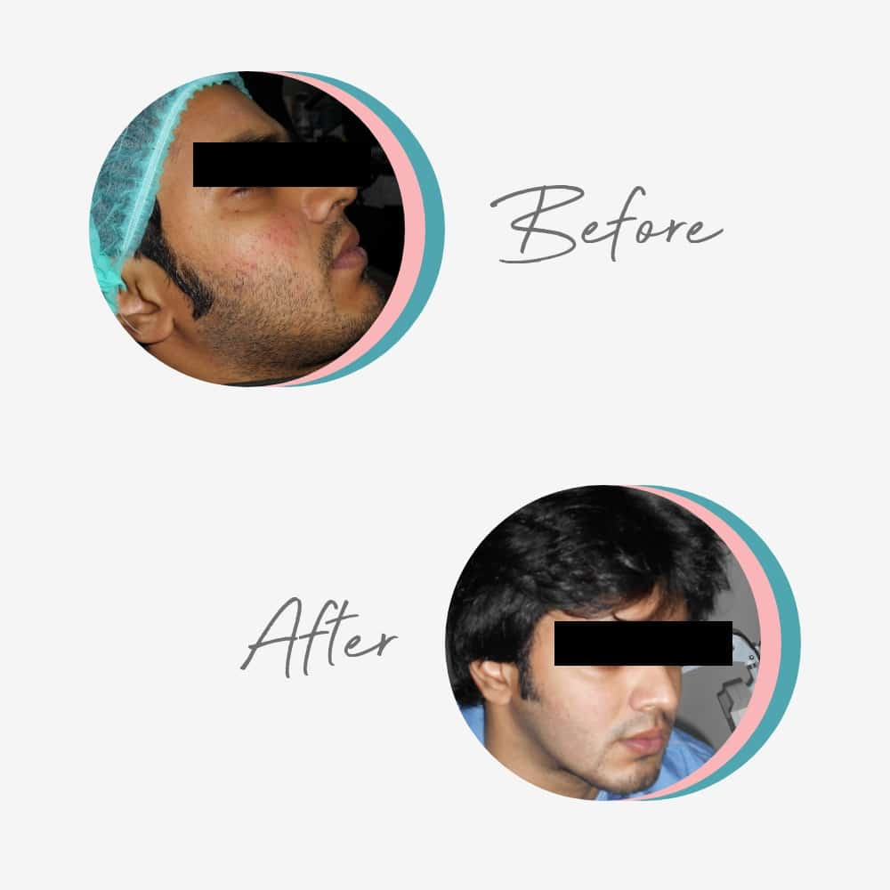 Acne treatment done with the help of peel, laser and medication by Dr Saba Rais