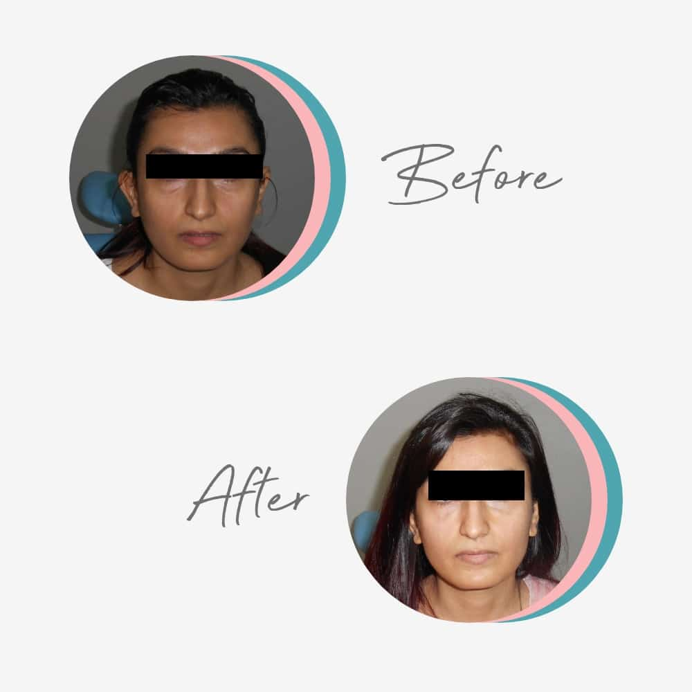 how to remove Dark Circles effectively? Skin Specialist in Lahore