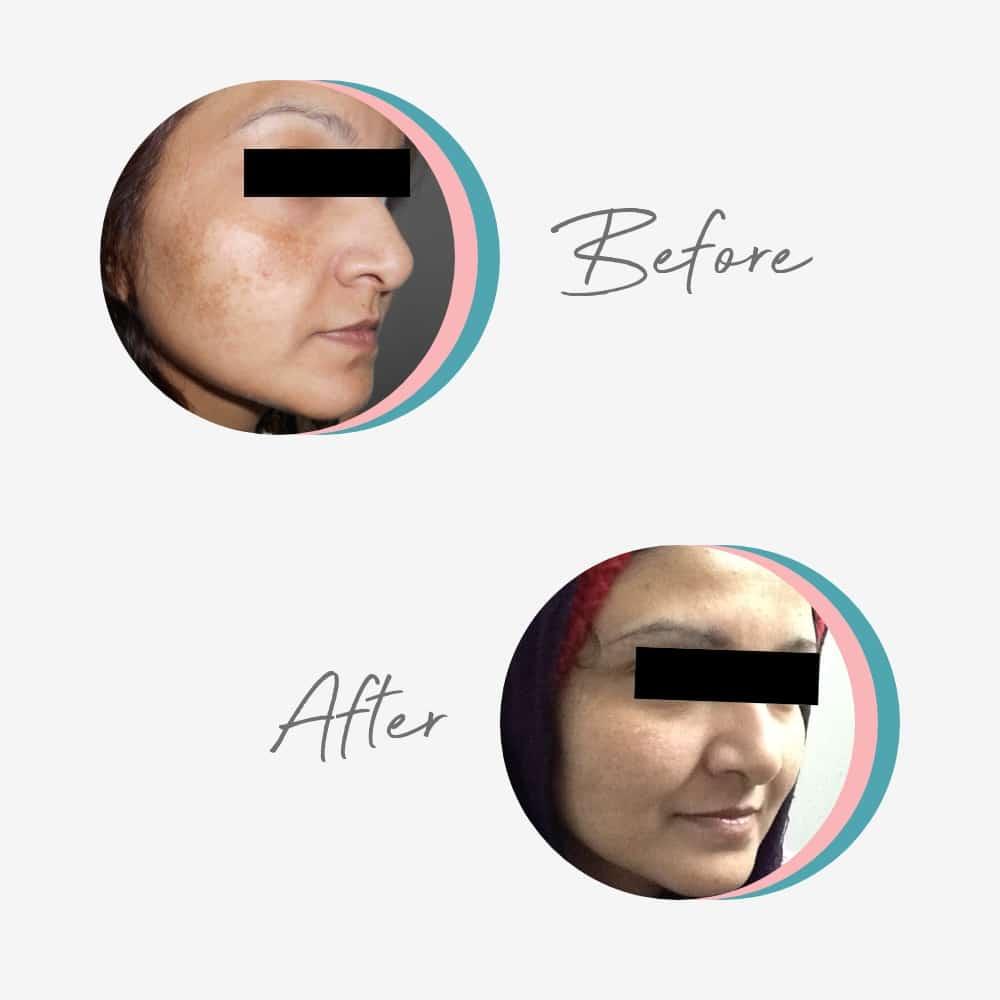 Hyperpigmentation & Melasma Treatment Skin Specialist in Lahore