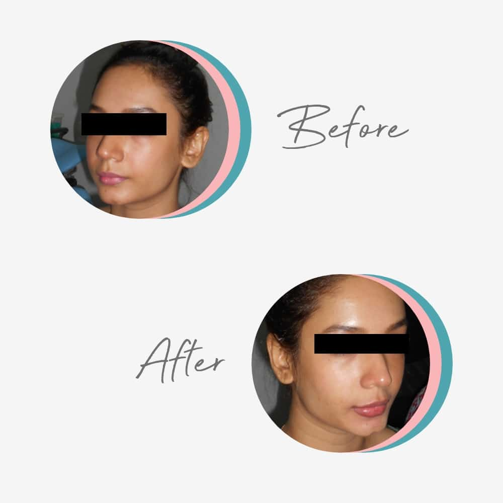 Non Surgical Facelift & Wrinkle Treatment
