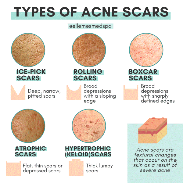 Types of ACNE SCARRING