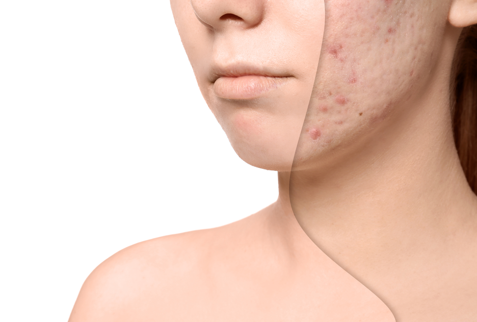 ACNE SCARRING – WHAT YOU NEED TO KNOW