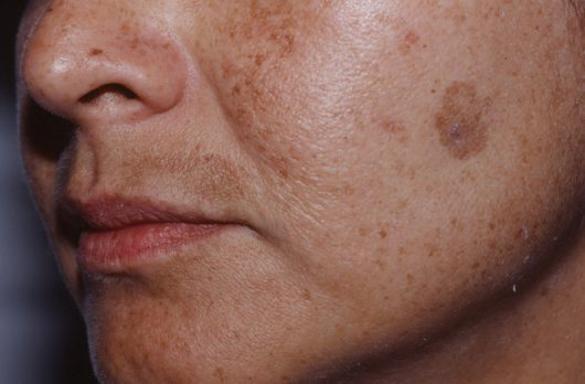 HYPERPIGMENTATION IS A FRUSTRATING SKINCARE CONCERN– Here's how to tackle it